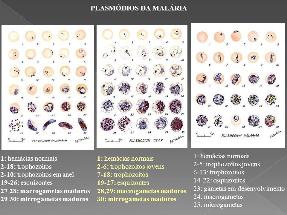 PLASMÓDIOS DA MALÁRIA 1: hemácias normais 2-5: trophozoítos jovens