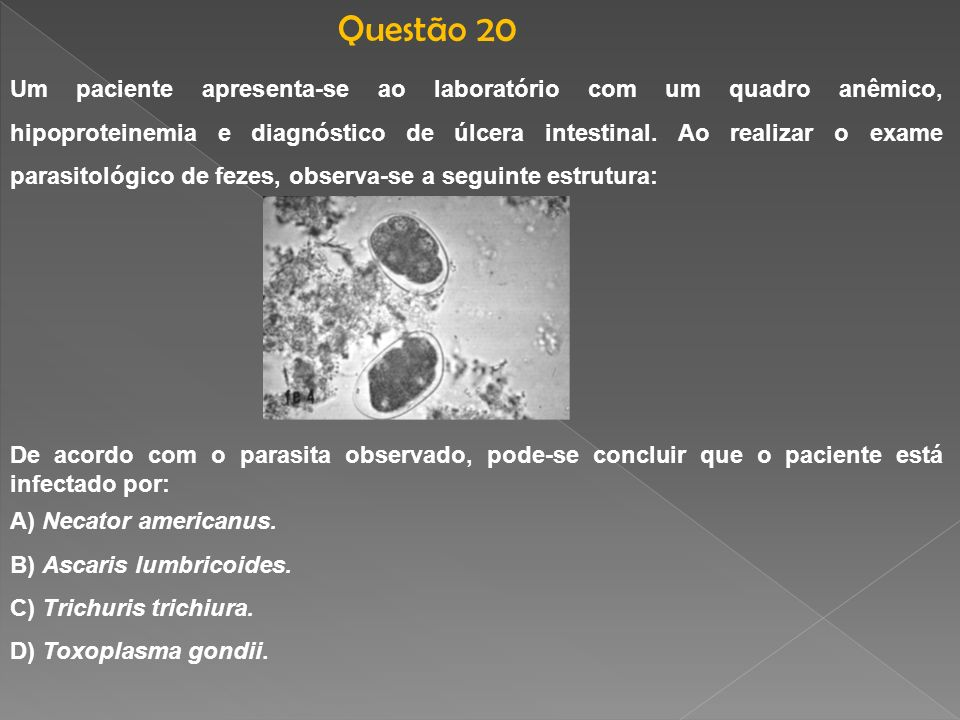 Questão 20
