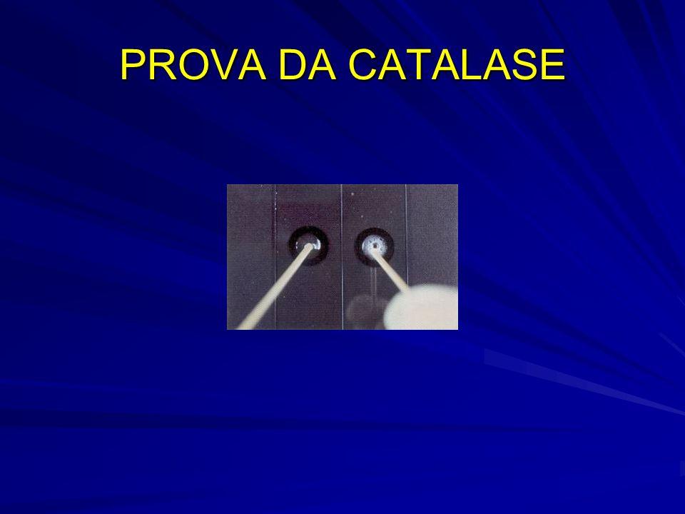 PROVA DA CATALASE