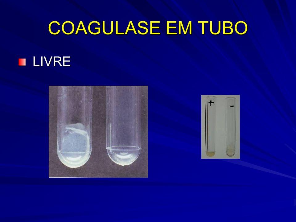 COAGULASE EM TUBO LIVRE