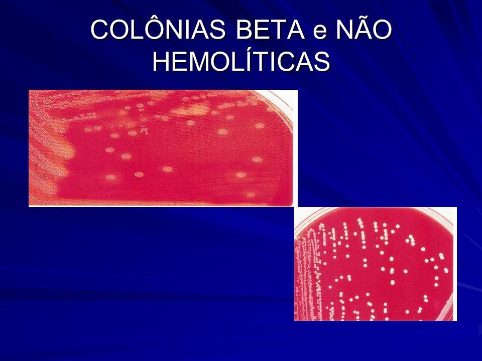 COLÔNIAS BETA e NÃO HEMOLÍTICAS