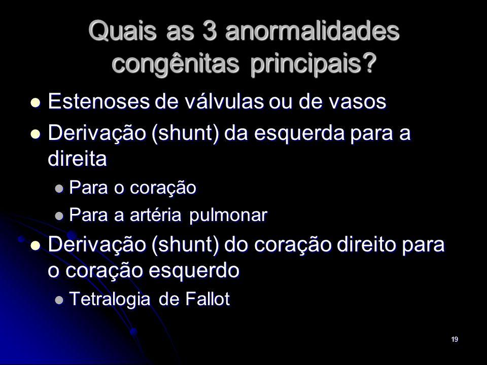 Quais as 3 anormalidades congênitas principais