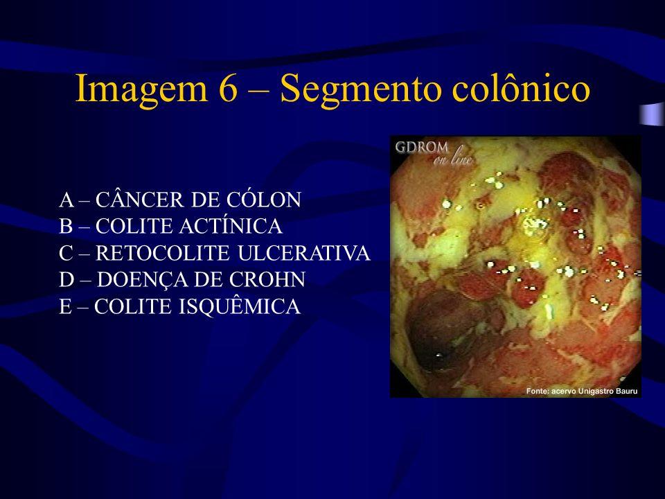 Imagem 6 – Segmento colônico