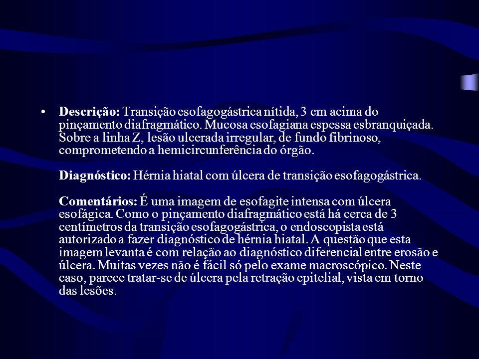 Descrição: Transição esofagogástrica nítida, 3 cm acima do pinçamento diafragmático.