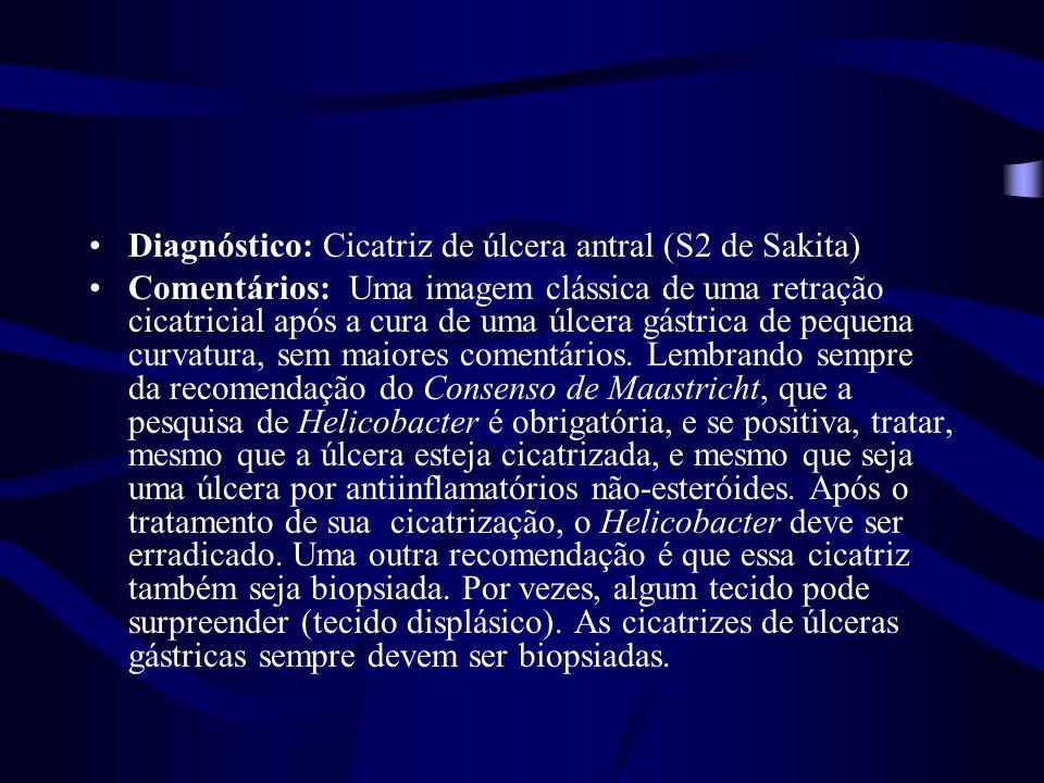 Diagnóstico: Cicatriz de úlcera antral (S2 de Sakita)