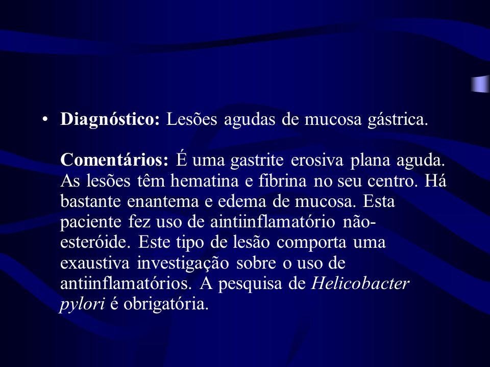 Diagnóstico: Lesões agudas de mucosa gástrica