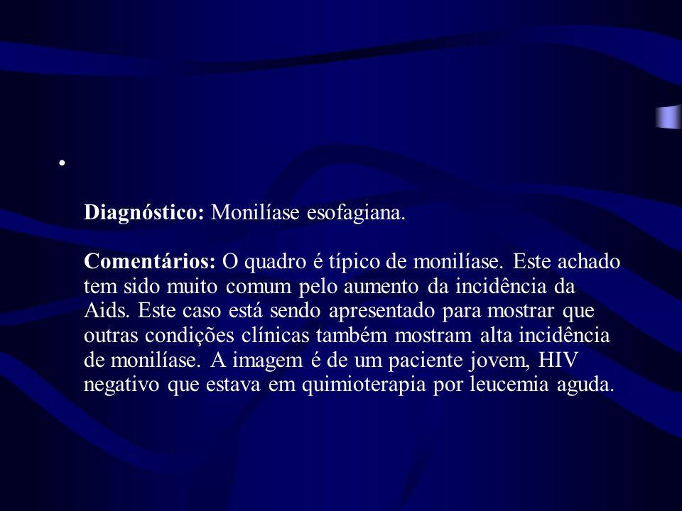 Diagnóstico: Monilíase esofagiana