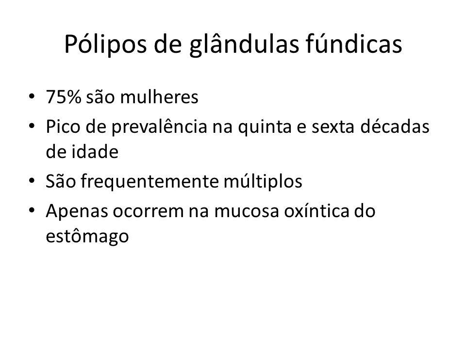 Pólipos de glândulas fúndicas