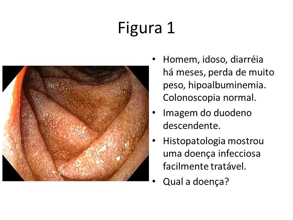 Figura 1Homem, idoso, diarréia há meses, perda de muito peso, hipoalbuminemia. Colonoscopia normal.