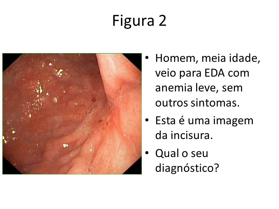 Figura 2Homem, meia idade, veio para EDA com anemia leve, sem outros sintomas. Esta é uma imagem da incisura.