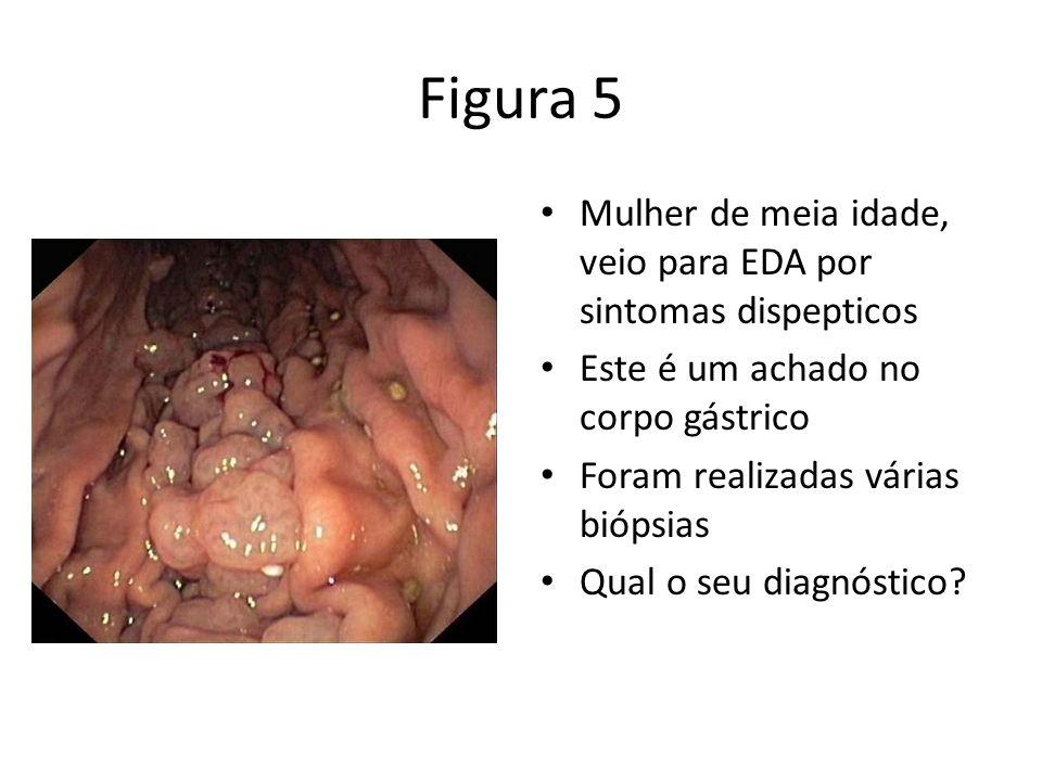 Figura 5 Mulher de meia idade, veio para EDA por sintomas dispepticos