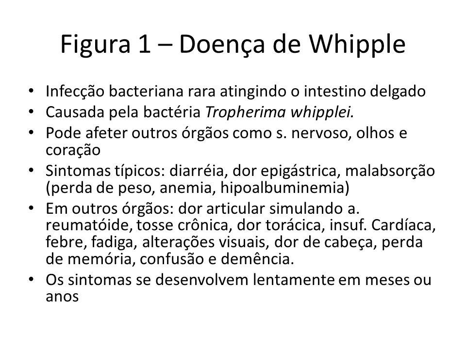 Figura 1 – Doença de Whipple