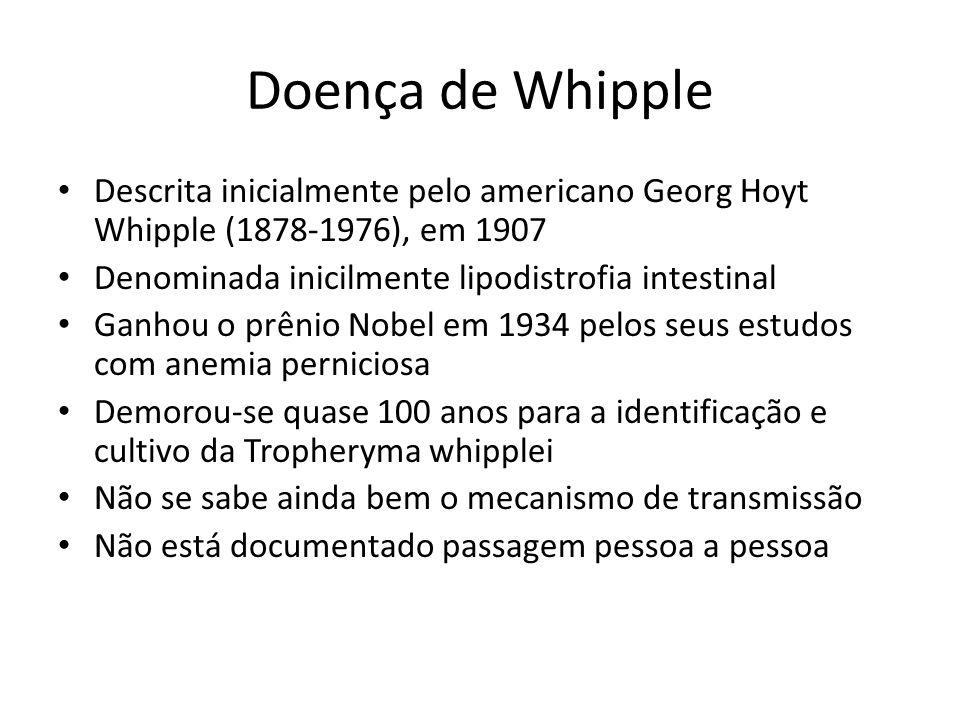 Doença de Whipple Descrita inicialmente pelo americano Georg Hoyt Whipple (1878-1976), em 1907. Denominada inicilmente lipodistrofia intestinal.