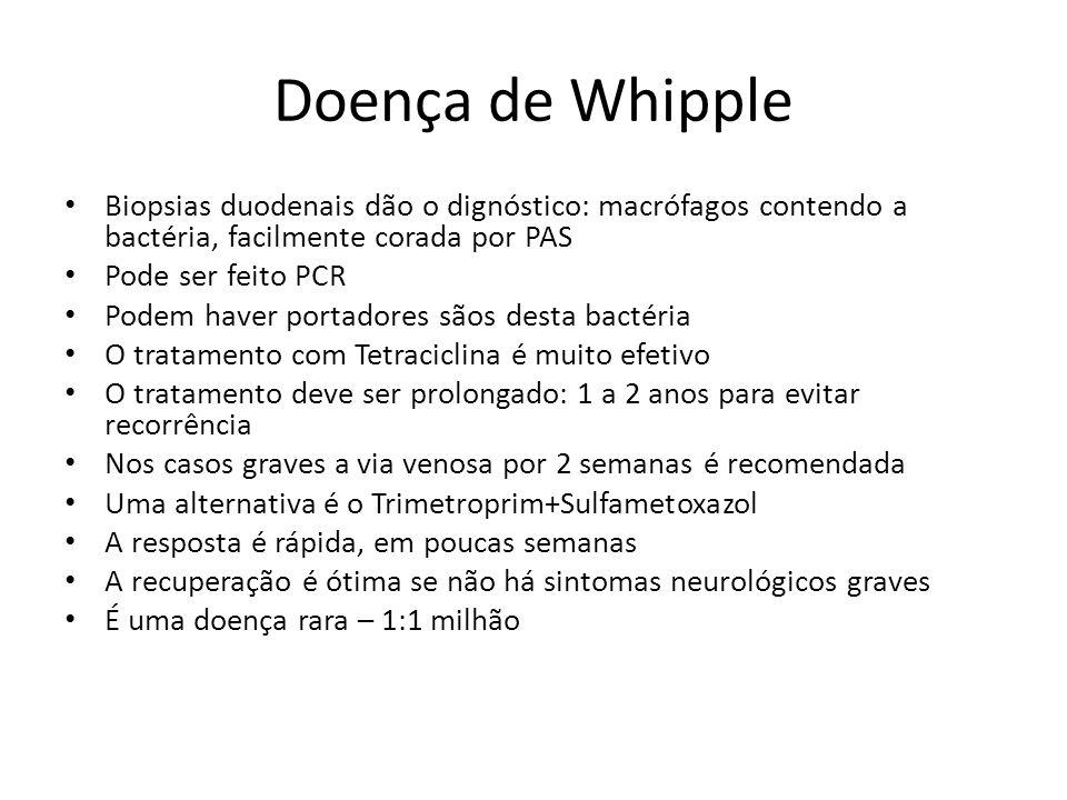 Doença de Whipple Biopsias duodenais dão o dignóstico: macrófagos contendo a bactéria, facilmente corada por PAS.