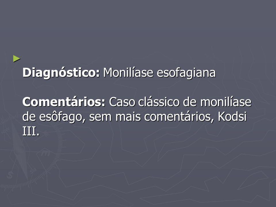Diagnóstico: Monilíase esofagiana Comentários: Caso clássico de monilíase de esôfago, sem mais comentários, Kodsi III.