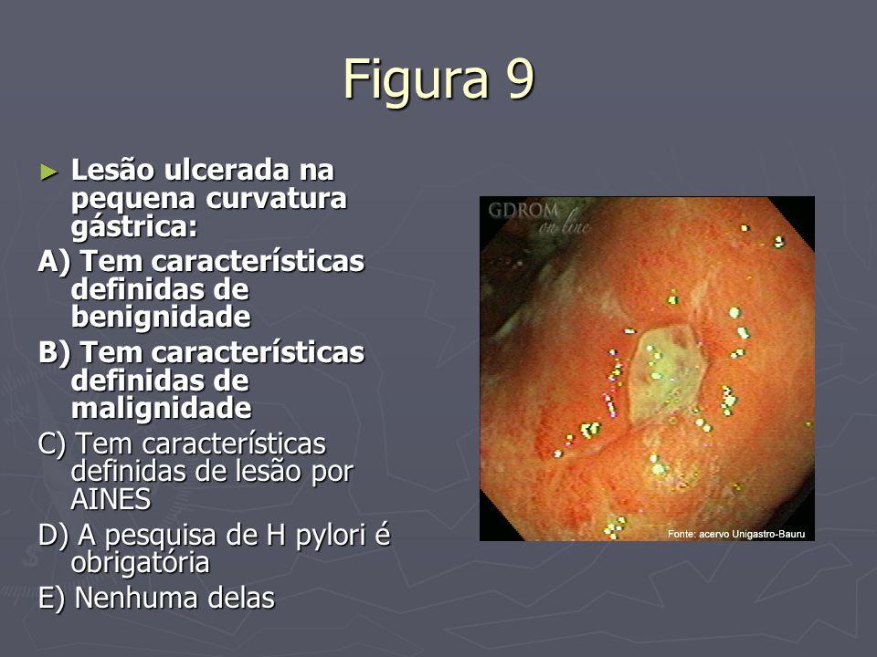 Figura 9 Lesão ulcerada na pequena curvatura gástrica: