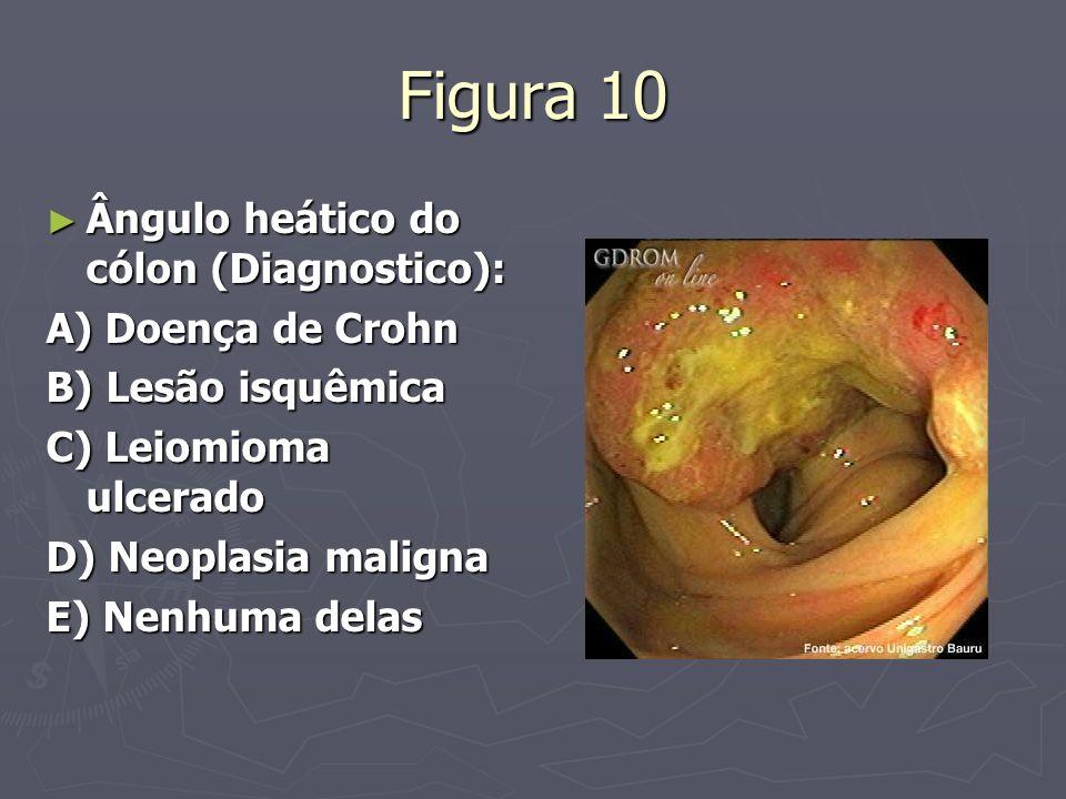 Figura 10 Ângulo heático do cólon (Diagnostico): A) Doença de Crohn