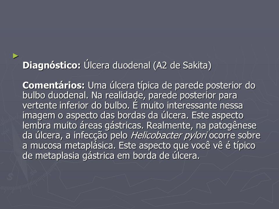 Diagnóstico: Úlcera duodenal (A2 de Sakita) Comentários: Uma úlcera típica de parede posterior do bulbo duodenal.
