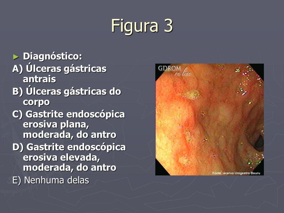 Figura 3 Diagnóstico: A) Úlceras gástricas antrais
