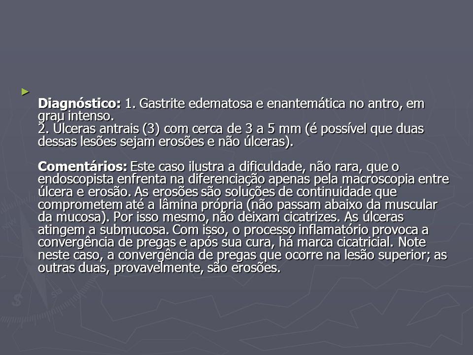 Diagnóstico: 1. Gastrite edematosa e enantemática no antro, em grau intenso.