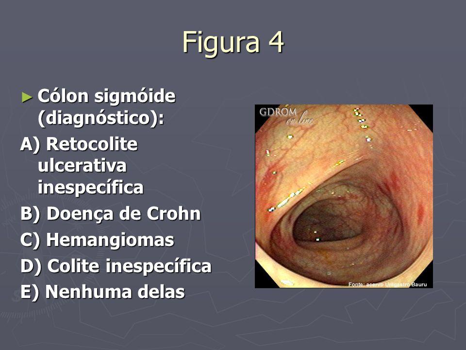 Figura 4 Cólon sigmóide (diagnóstico):