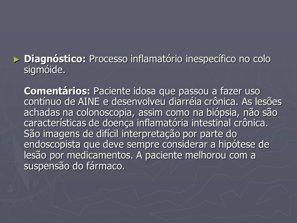 Diagnóstico: Processo inflamatório inespecífico no colo sigmóide