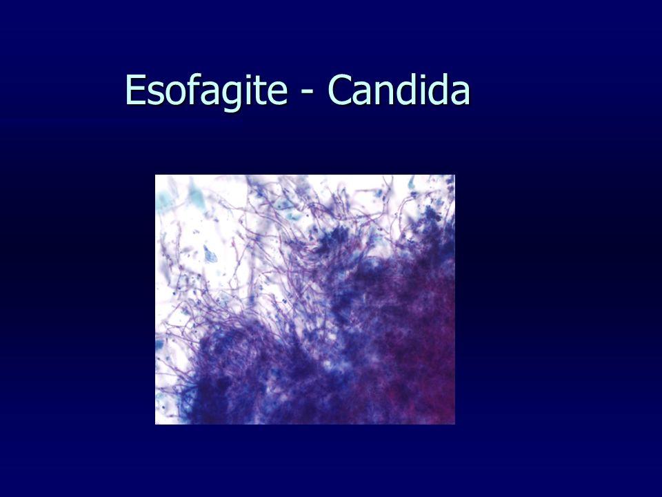 Esofagite - Candida