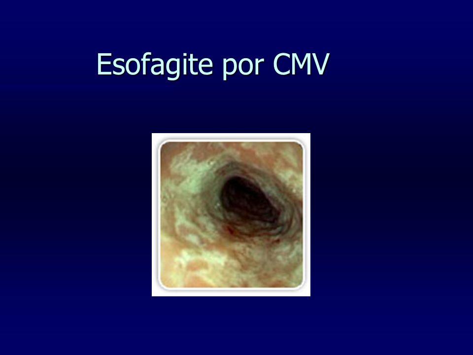 Esofagite por CMV