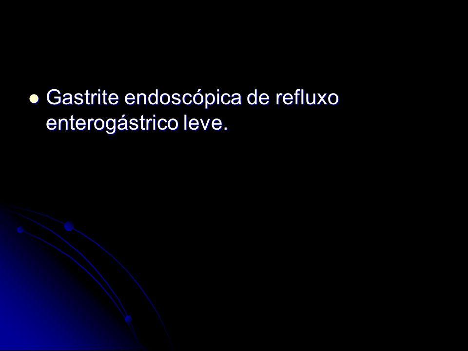 Gastrite endoscópica de refluxo enterogástrico leve.