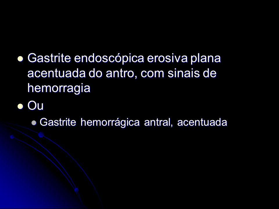 Gastrite endoscópica erosiva plana acentuada do antro, com sinais de hemorragia