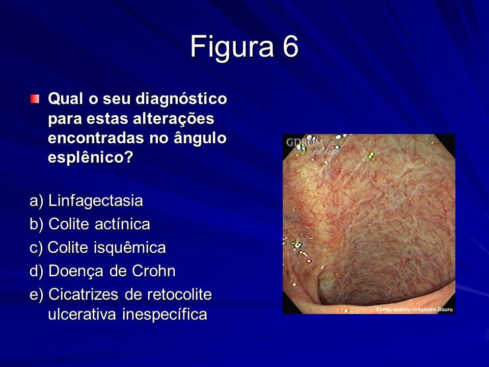 Figura 6 Qual o seu diagnóstico para estas alterações encontradas no ângulo esplênico a) Linfagectasia