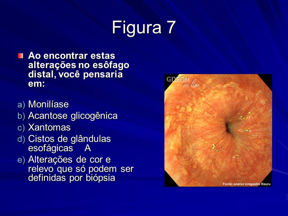 Figura 7 Ao encontrar estas alterações no esôfago distal, você pensaria em: Monilíase Acantose glicogênica