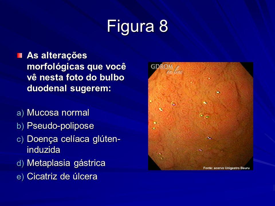 Figura 8 As alterações morfológicas que você vê nesta foto do bulbo duodenal sugerem: Mucosa normal