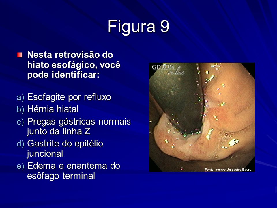 Figura 9 Nesta retrovisão do hiato esofágico, você pode identificar: