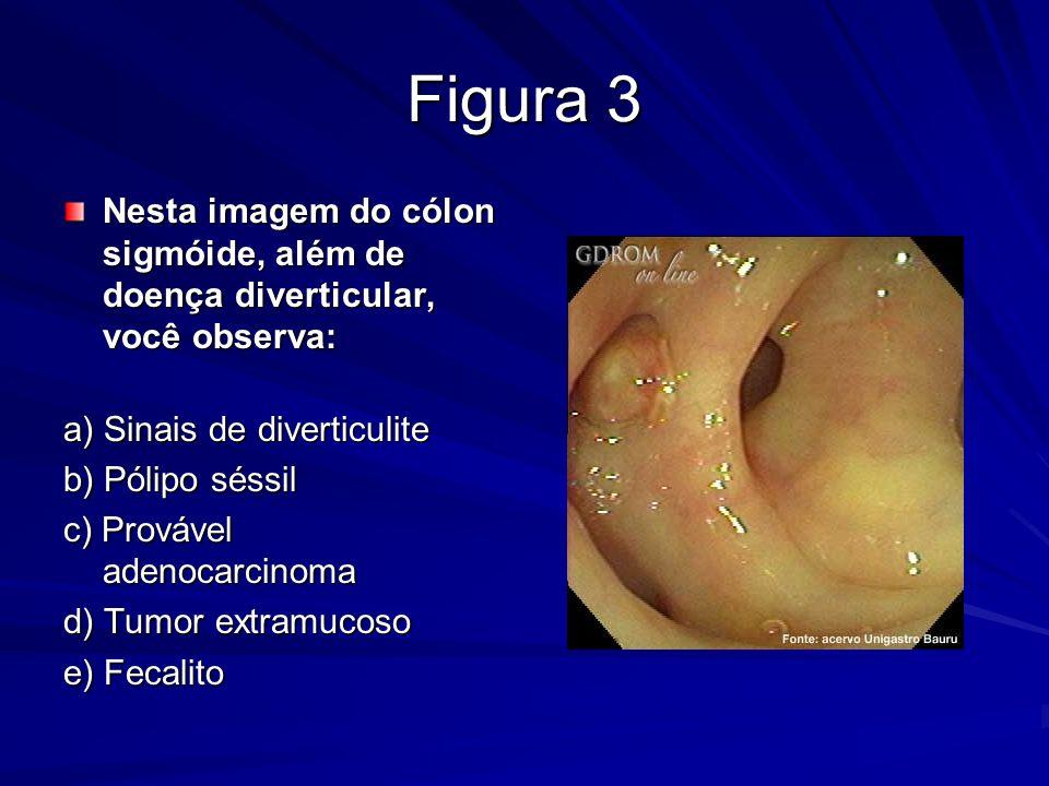 Figura 3 Nesta imagem do cólon sigmóide, além de doença diverticular, você observa: a) Sinais de diverticulite