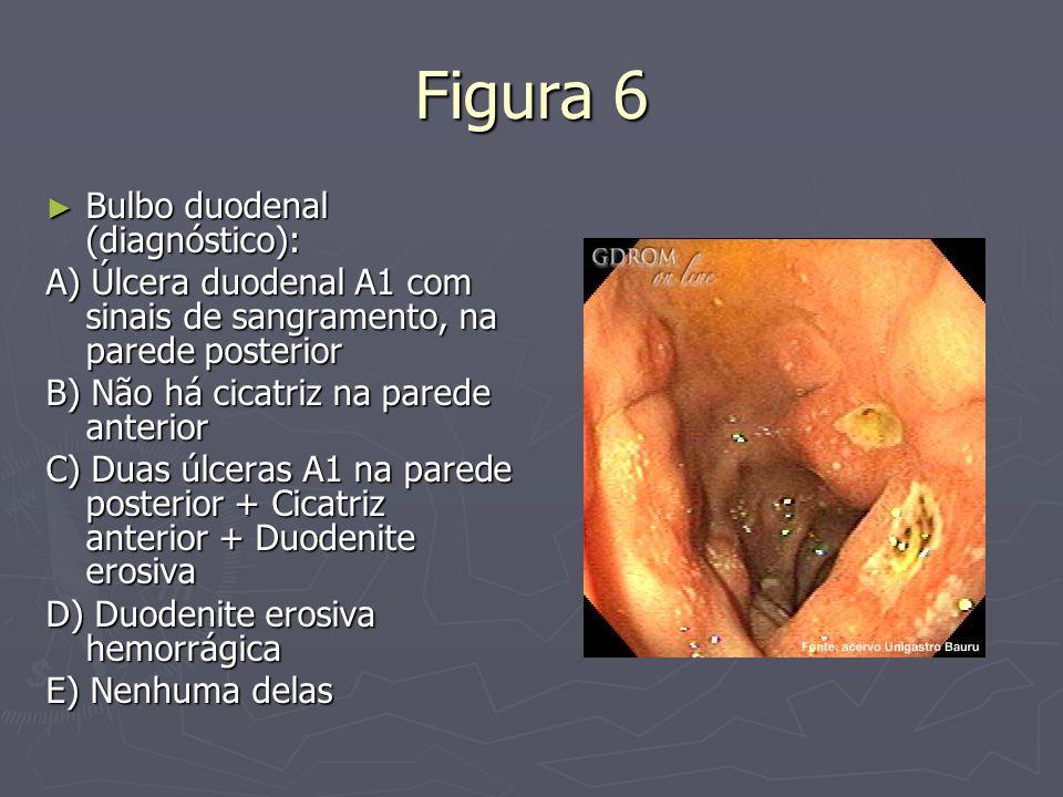 Figura 6 Bulbo duodenal (diagnóstico):