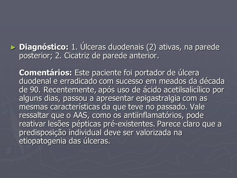 Diagnóstico: 1. Úlceras duodenais (2) ativas, na parede posterior; 2