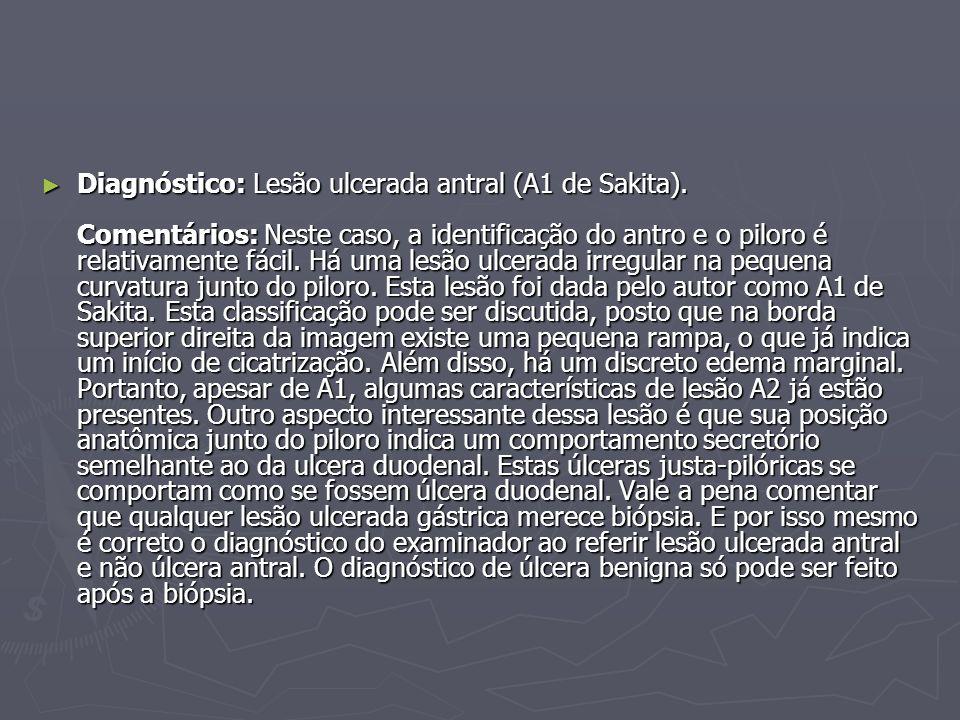 Diagnóstico: Lesão ulcerada antral (A1 de Sakita)