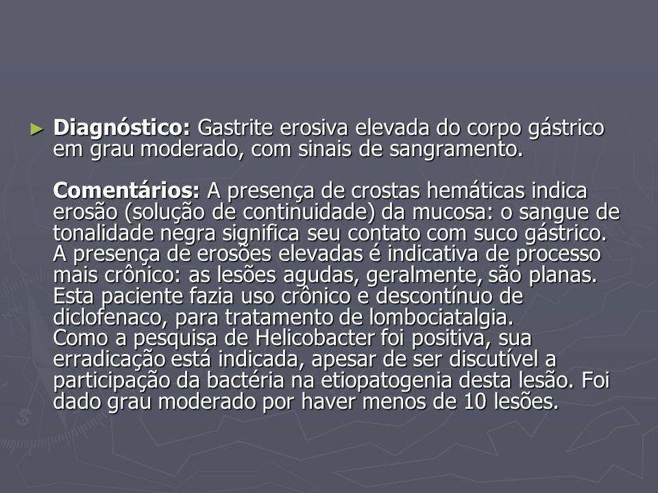 Diagnóstico: Gastrite erosiva elevada do corpo gástrico em grau moderado, com sinais de sangramento.