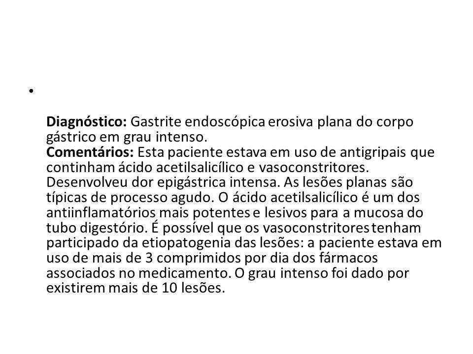 Diagnóstico: Gastrite endoscópica erosiva plana do corpo gástrico em grau intenso.