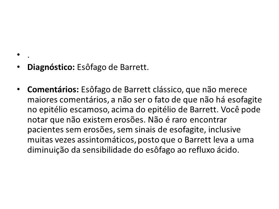 . Diagnóstico: Esôfago de Barrett.