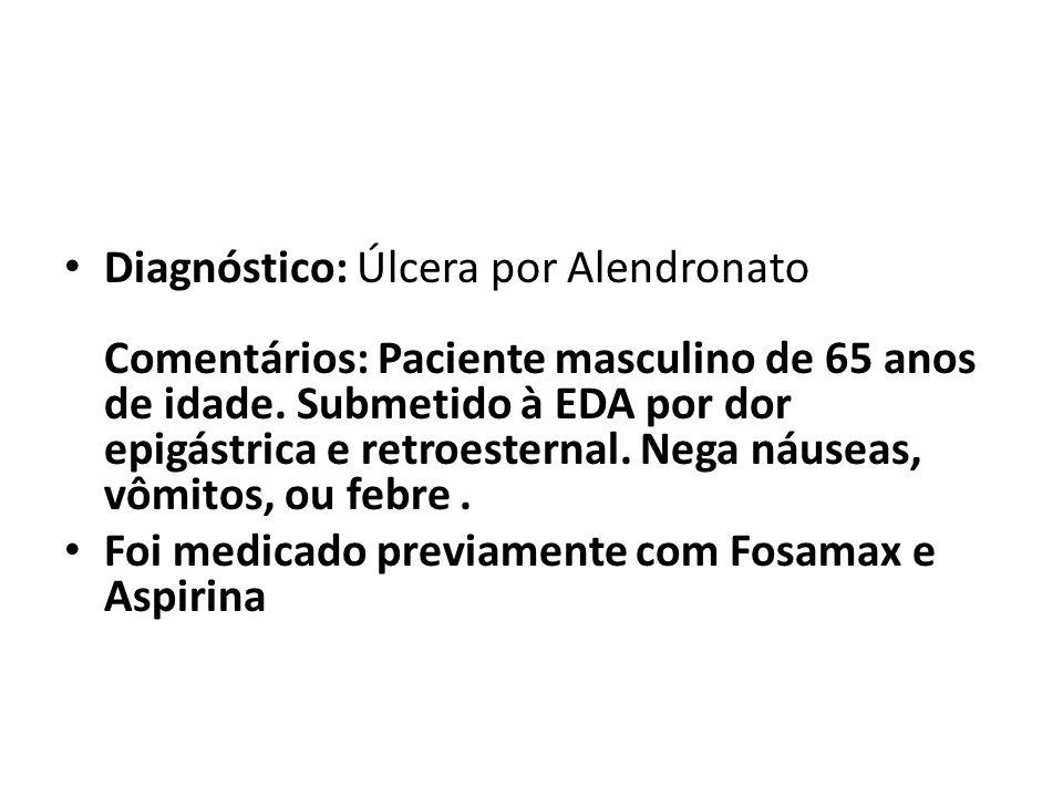 Diagnóstico: Úlcera por Alendronato Comentários: Paciente masculino de 65 anos de idade. Submetido à EDA por dor epigástrica e retroesternal. Nega náuseas, vômitos, ou febre .