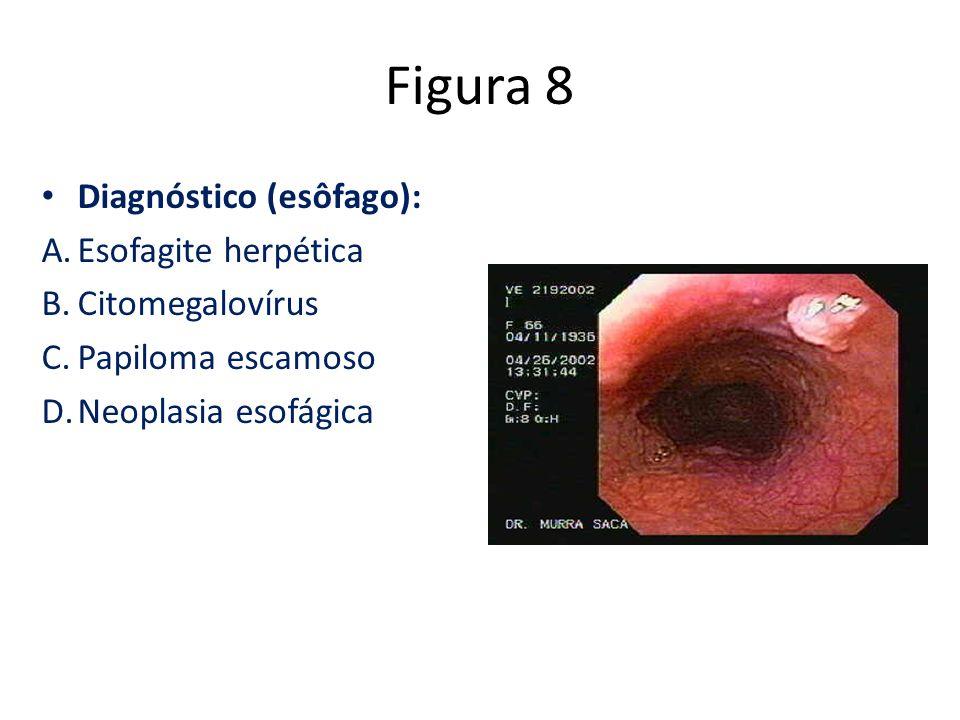 Figura 8 Diagnóstico (esôfago): Esofagite herpética Citomegalovírus