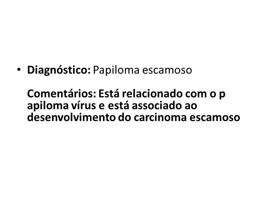 Diagnóstico: Papiloma escamoso Comentários: Está relacionado com o p apiloma vírus e está associado ao desenvolvimento do carcinoma escamoso
