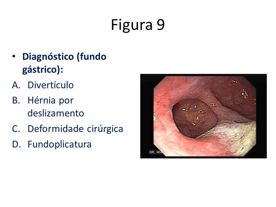 Figura 9 Diagnóstico (fundo gástrico): Divertículo