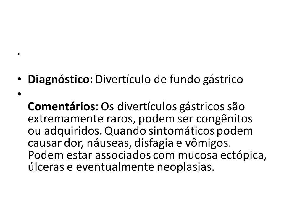 Diagnóstico: Divertículo de fundo gástrico