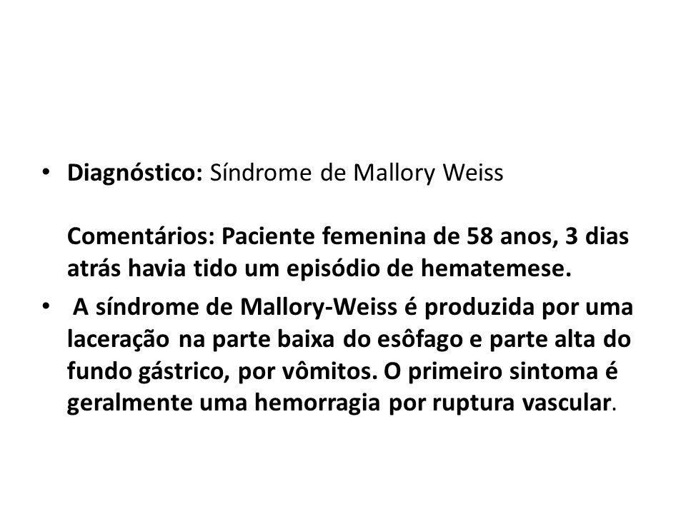 Diagnóstico: Síndrome de Mallory Weiss Comentários: Paciente femenina de 58 anos, 3 dias atrás havia tido um episódio de hematemese.