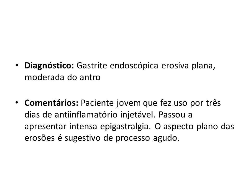 Diagnóstico: Gastrite endoscópica erosiva plana, moderada do antro