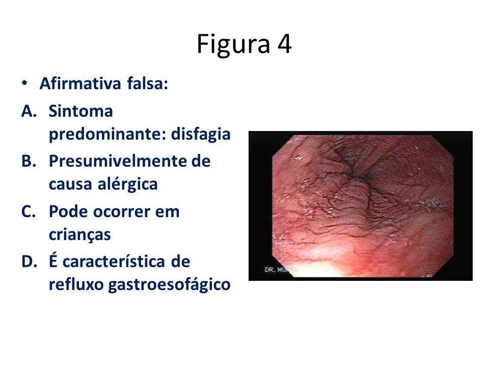 Figura 4 Afirmativa falsa: Sintoma predominante: disfagia