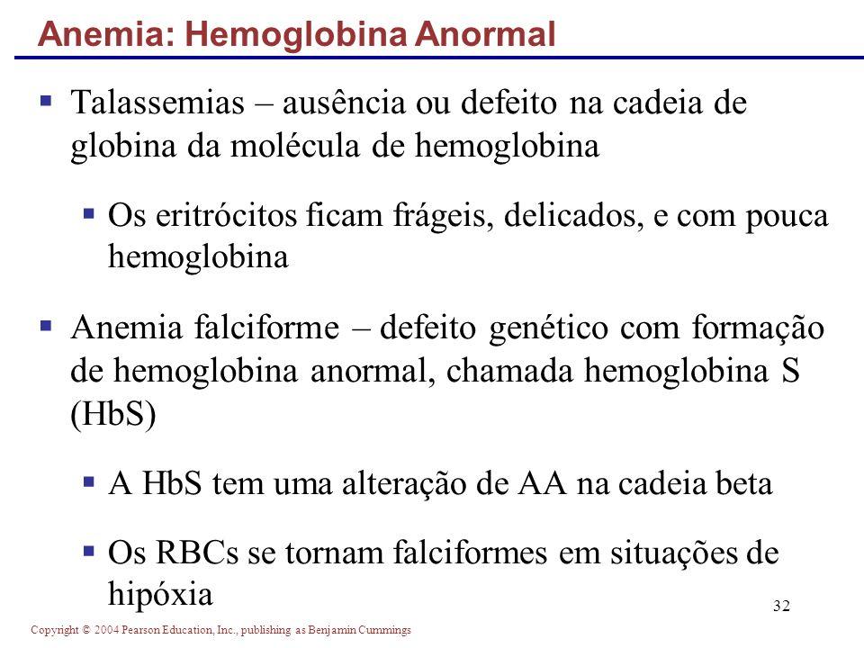 Anemia: Hemoglobina Anormal